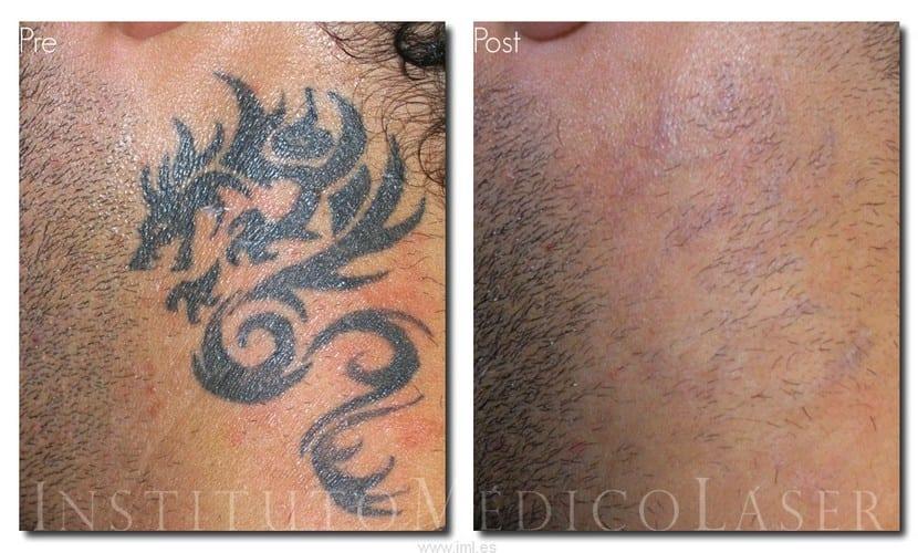 El láser se utiliza para eliminar tatus, ¿no?