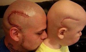 Padre se tatúa la cicatriz de su hijo enfermo de cáncer