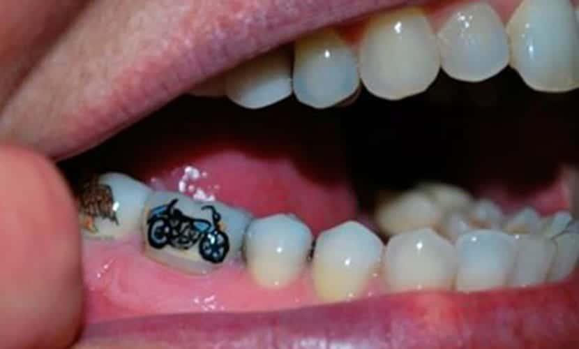Tatuar en los dientes - Tatteeth
