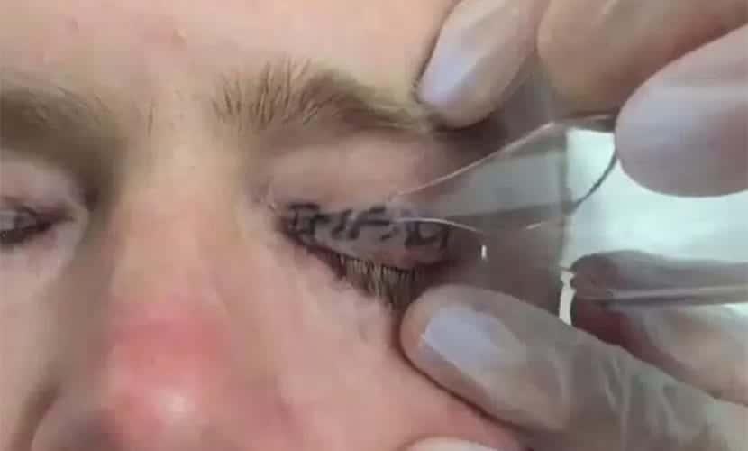 Tatuajes en los párpados