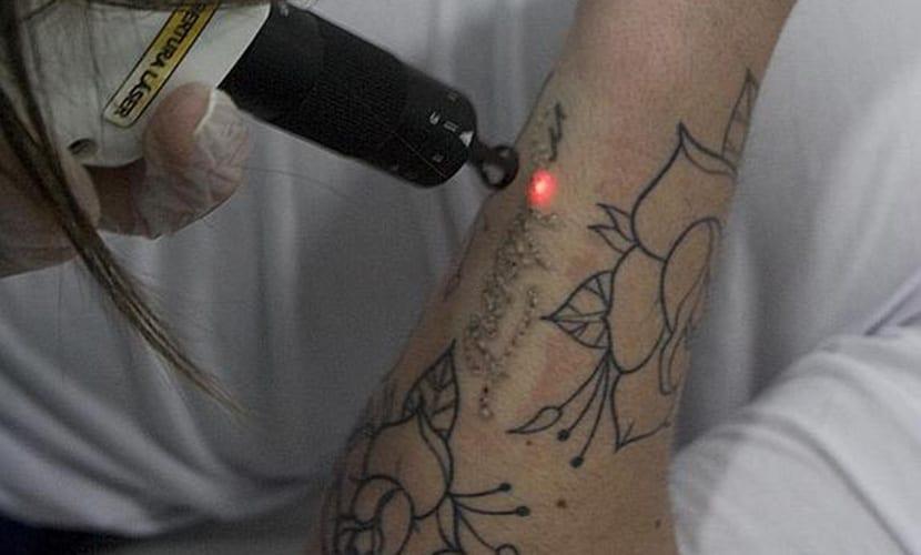 Método para eliminar tatuajes