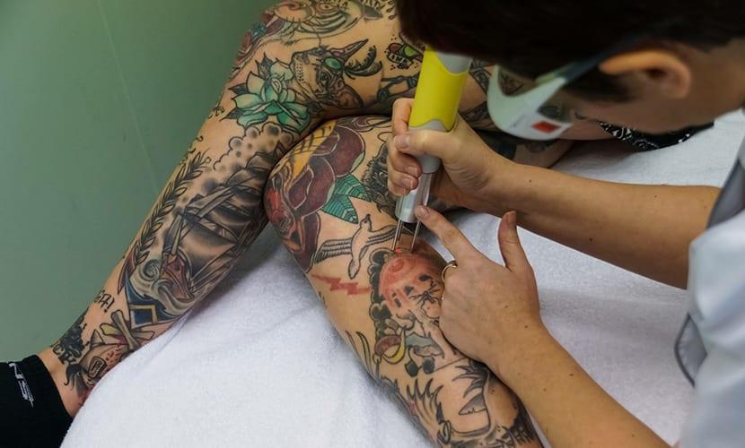 Eliminar un tatuaje