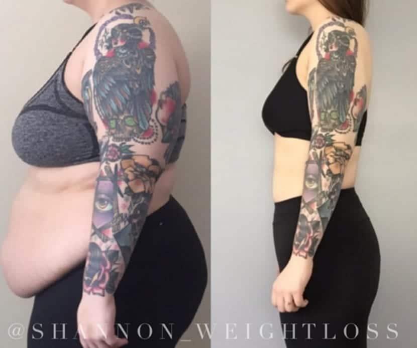 Remover tatuajes antes y despues de adelgazar