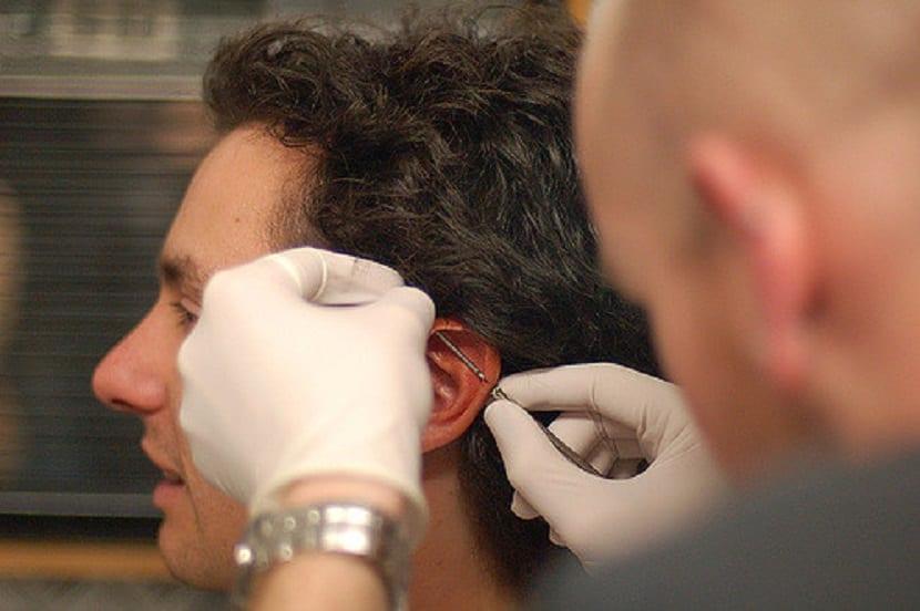 Colocación del piercing