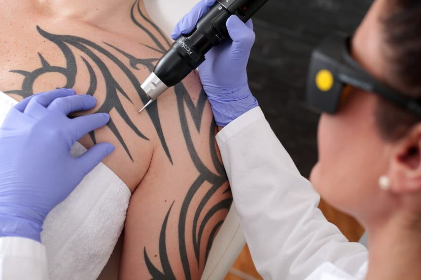 Tatuajes borrados láser