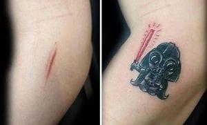 Camuflar heridas con tatuajes