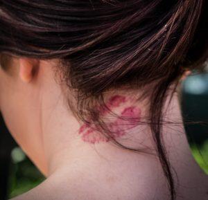 tatuajes de besos