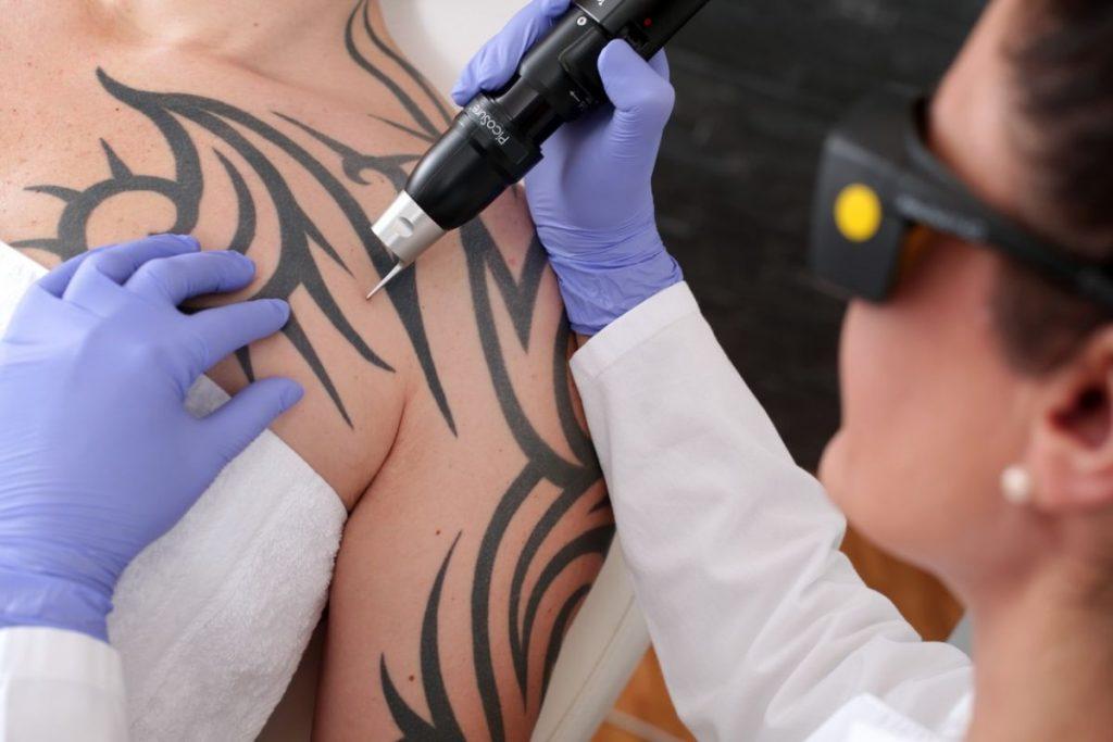 Quitar Tatuajes Láser
