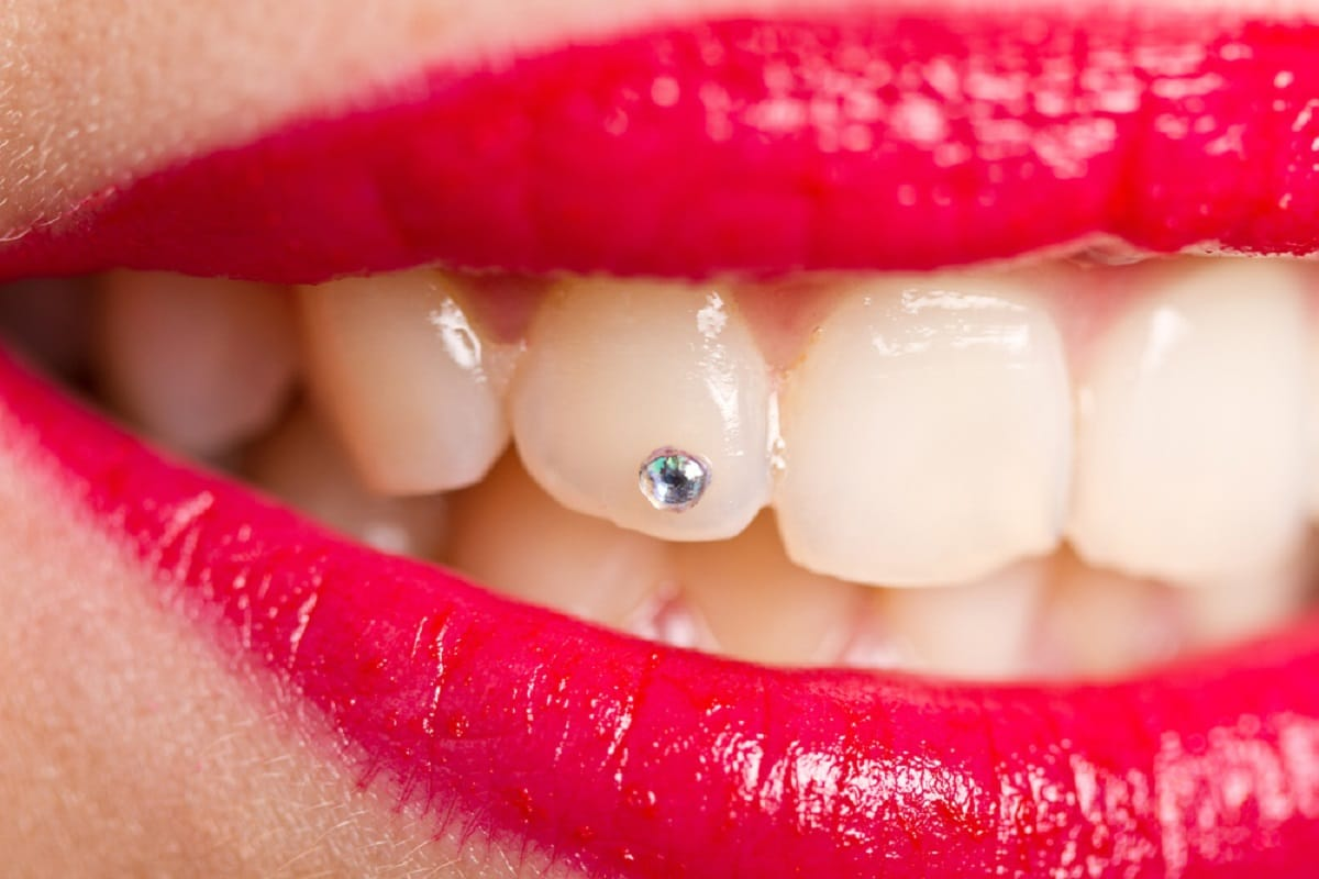 piercing-dental