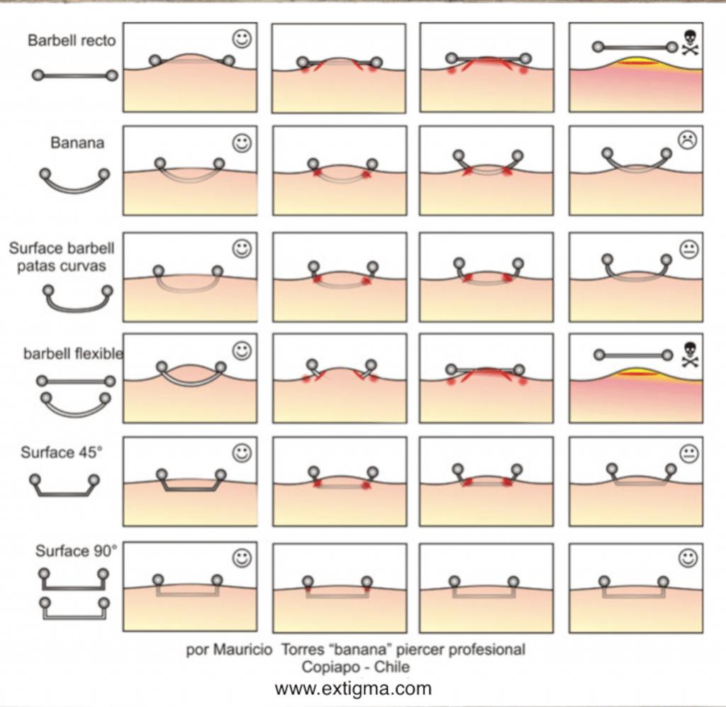 Surface Tragus Esquema